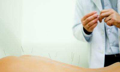 akupunktura-kmieciak-lukasz-centrum-leczenia-bolu-lodz.pomniejszone
